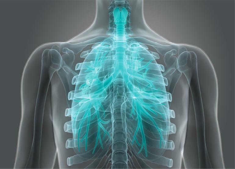 ''İPF yani akciğer sertleşmesi tedavisinde son yıllarda büyük gelişmeler elde edildi''