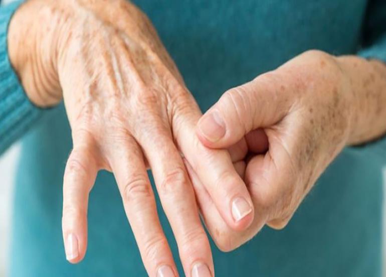 Romatoid artritte beslenme nasıl olmalı?
