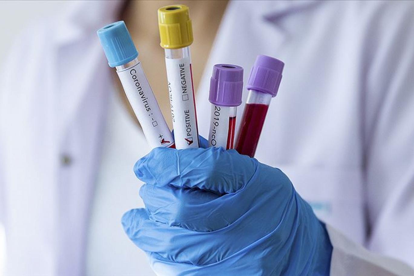 İki sağlık çalışanı daha korona virüsü nedeniyle hayatını kaybetti