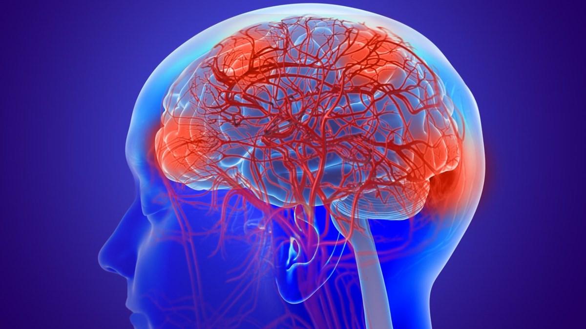 Korona, Alzheimer hastalığını şiddetlendiriyor