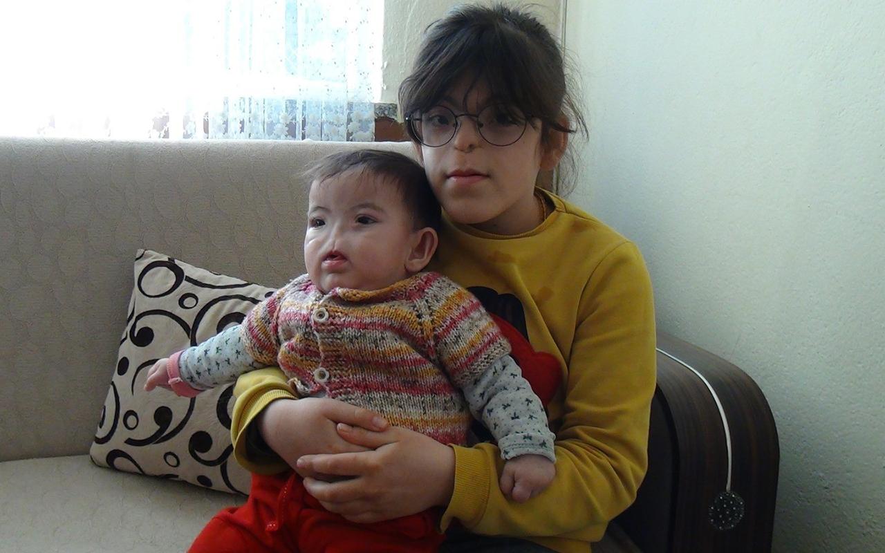 Doğuştan burunları ve solunum yolları bulunmayan küçük kız kardeşlerin zorlu hayatı