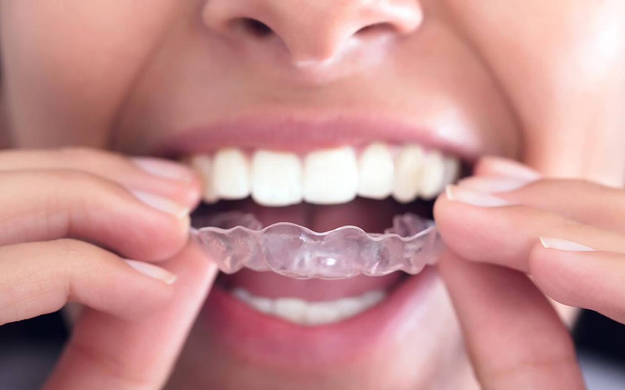 Ortodontik diş tedavisinde yeni yöntem: