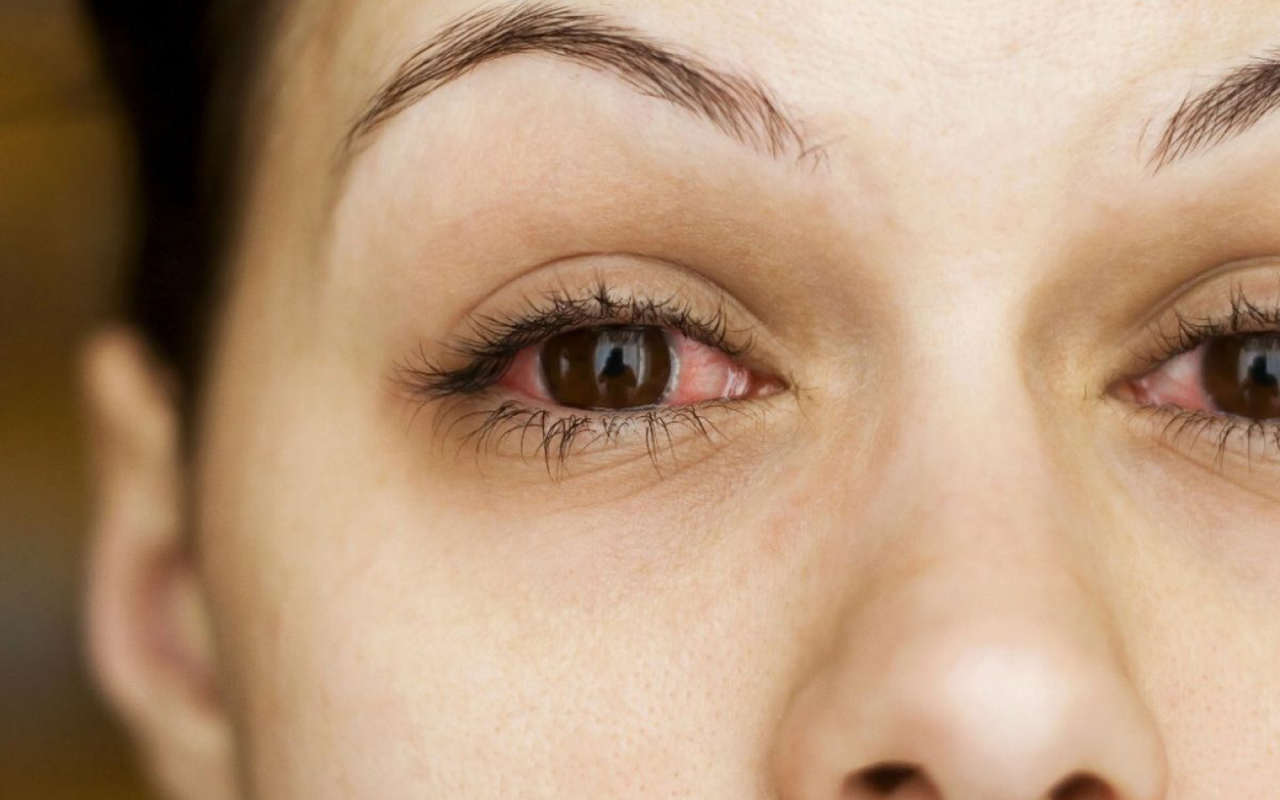 Bahar aylarında göz alerjisine dikkat