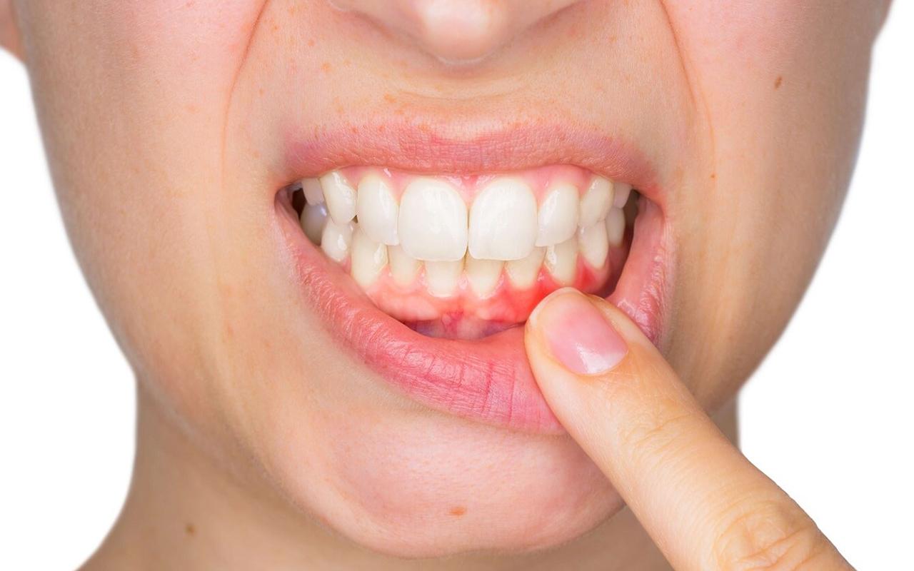 Diş eti hastalıkları sistemik hastalıkların belirtisi olabilir