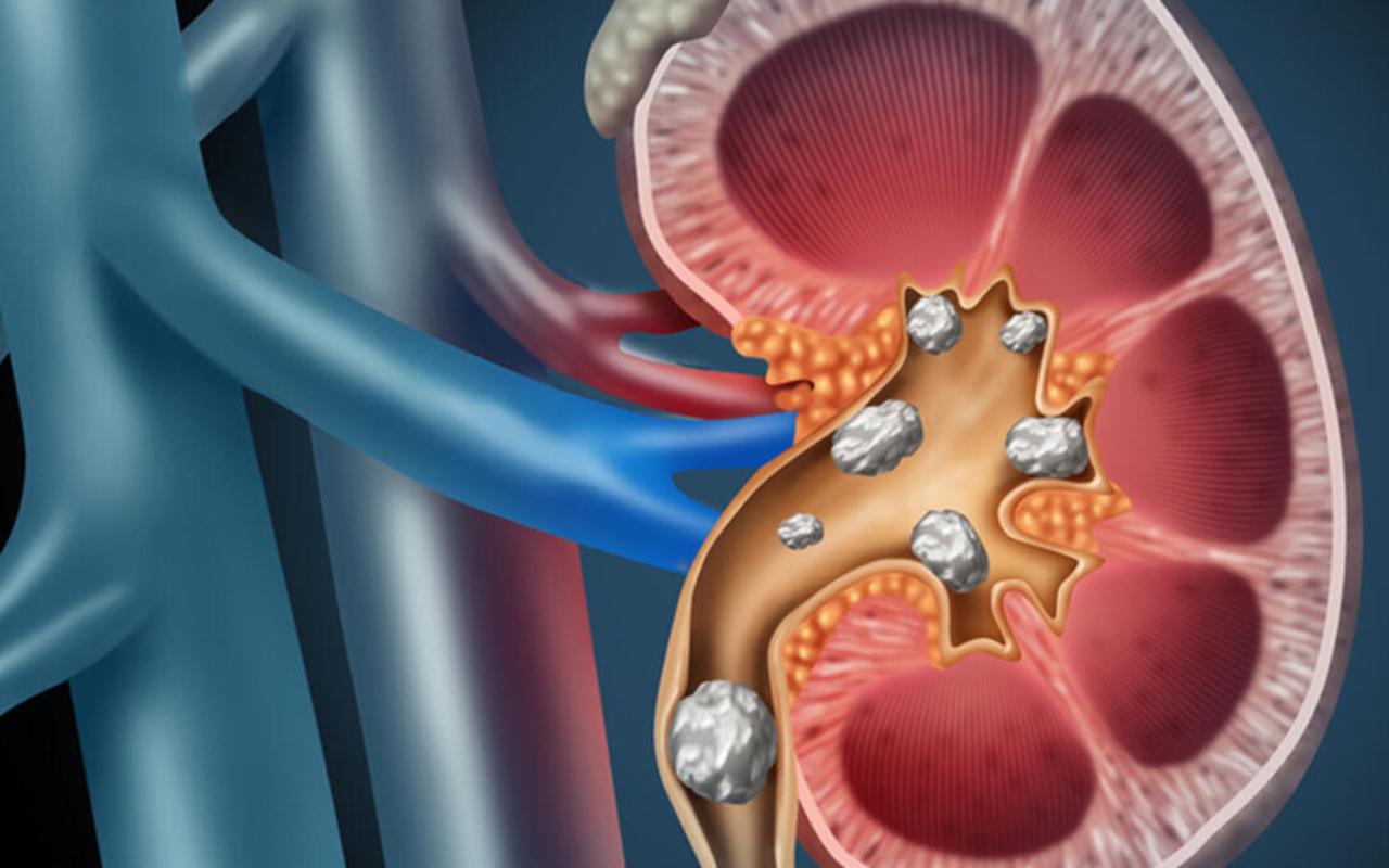 Zamanında tedavi edilmeyen böbrek taşları, kalıcı böbrek hasarlarına yol açıyor