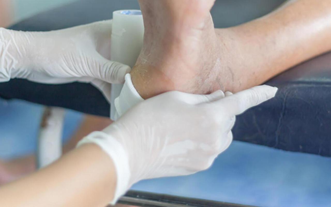 Diyabet hastalarında ayak enfeksiyonu riski