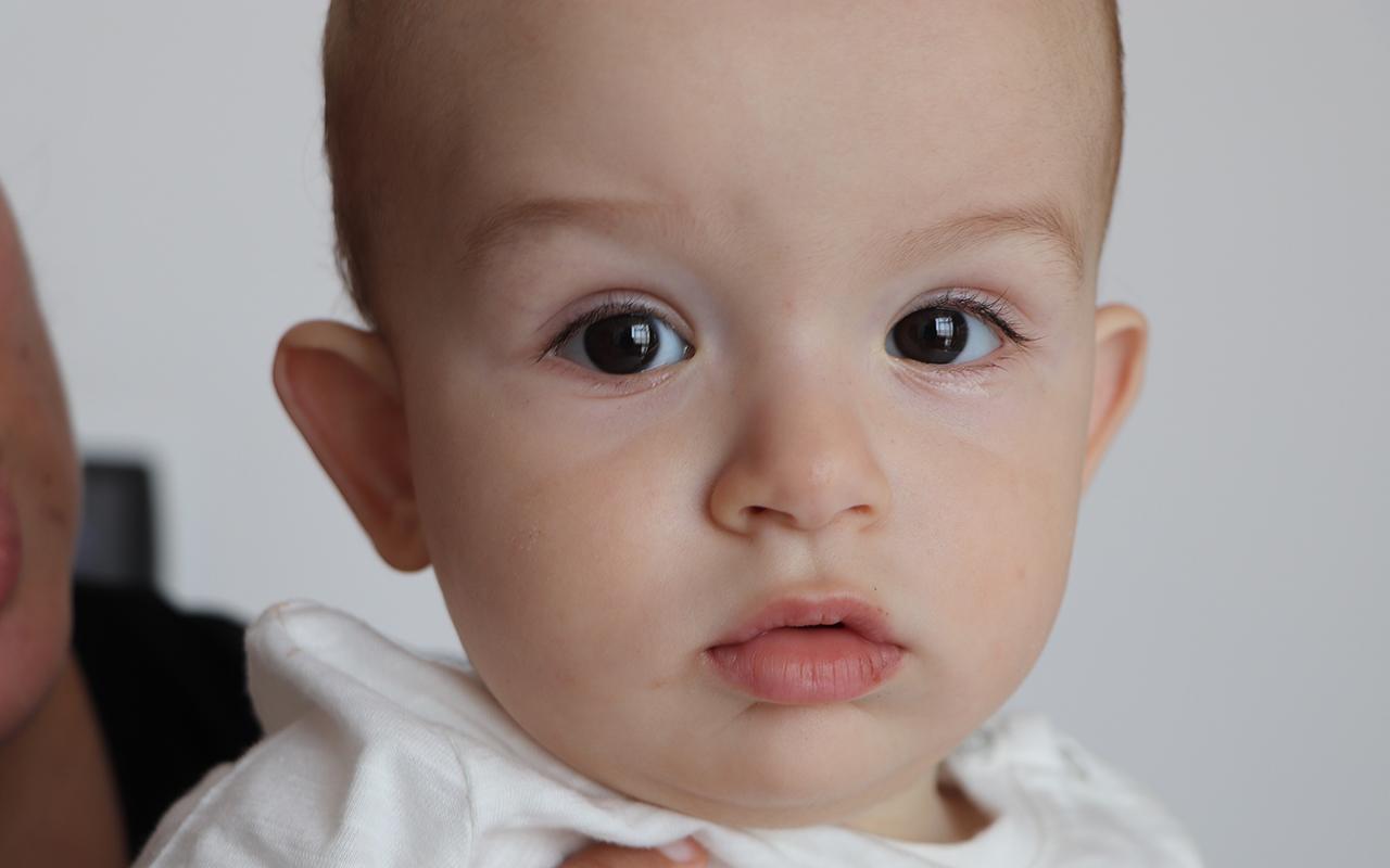 5 binde 1 görülen hastalığa yakalanan bebek erken müdahale ile iyileşti