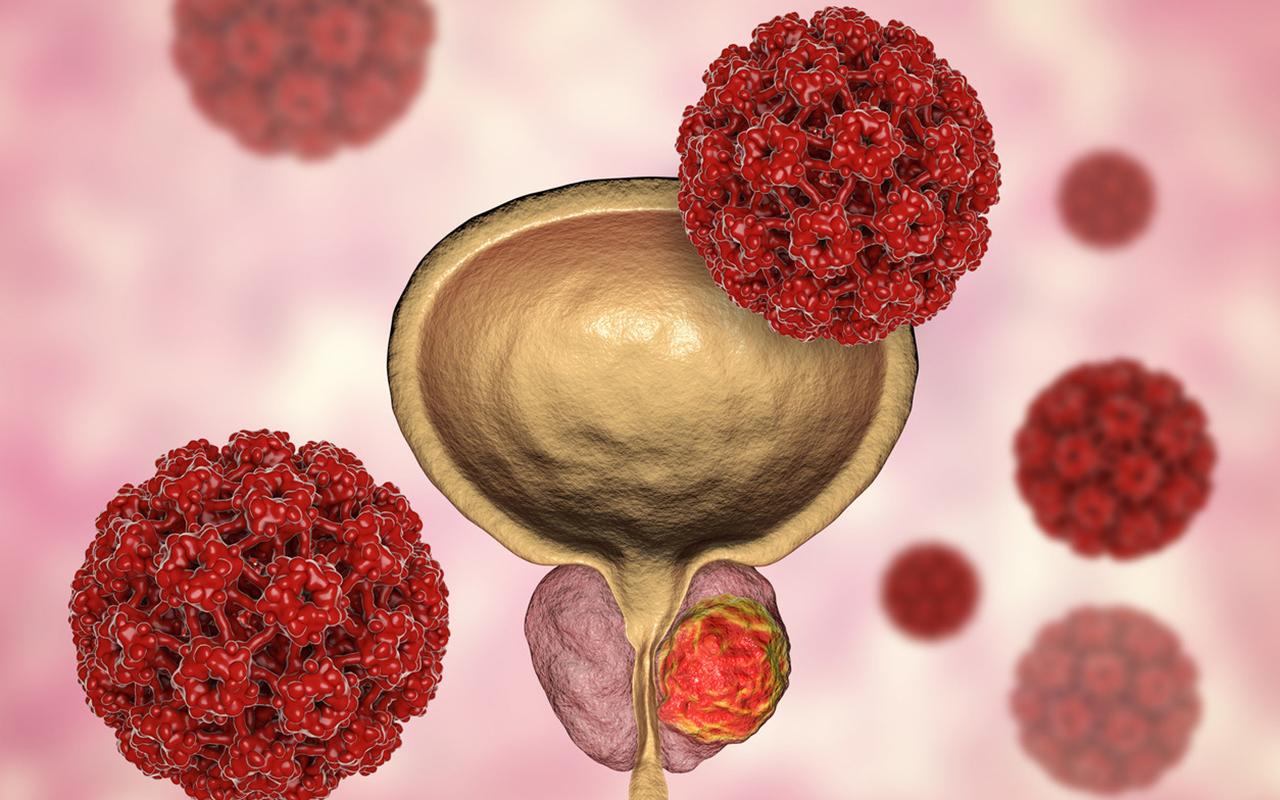15 Eylül Dünya Prostat Kanseri Günü